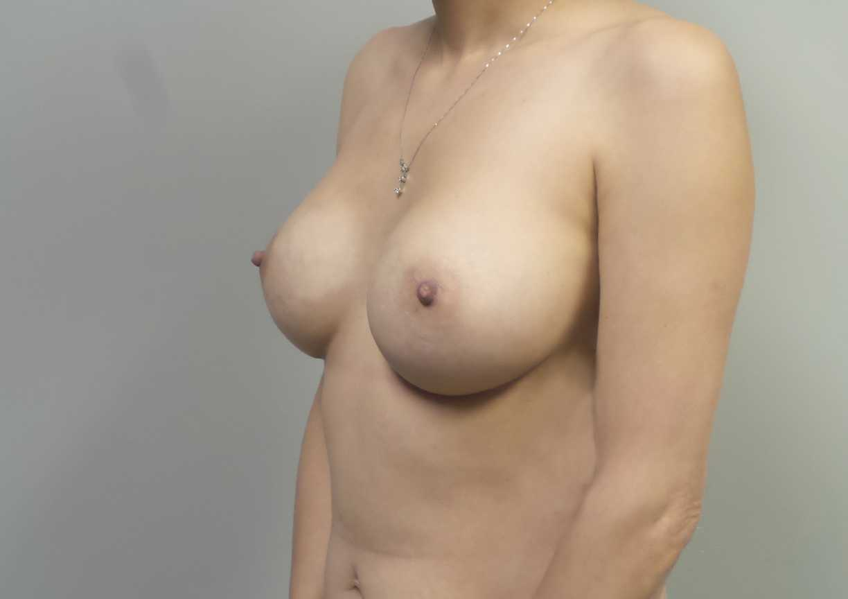 An After photo of a Breast Augmentation Plastic Surgery in Seattle and Tacoma