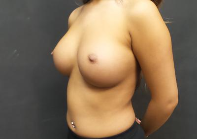 An After photo of a Breast Augmentation Plastic Surgery by Dr. Craig Jonov in Seattle and Tacoma