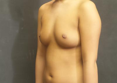 A Before photo of a Breast Augmentation Plastic Surgery by Dr. Craig Jonov in Seattle and Tacoma