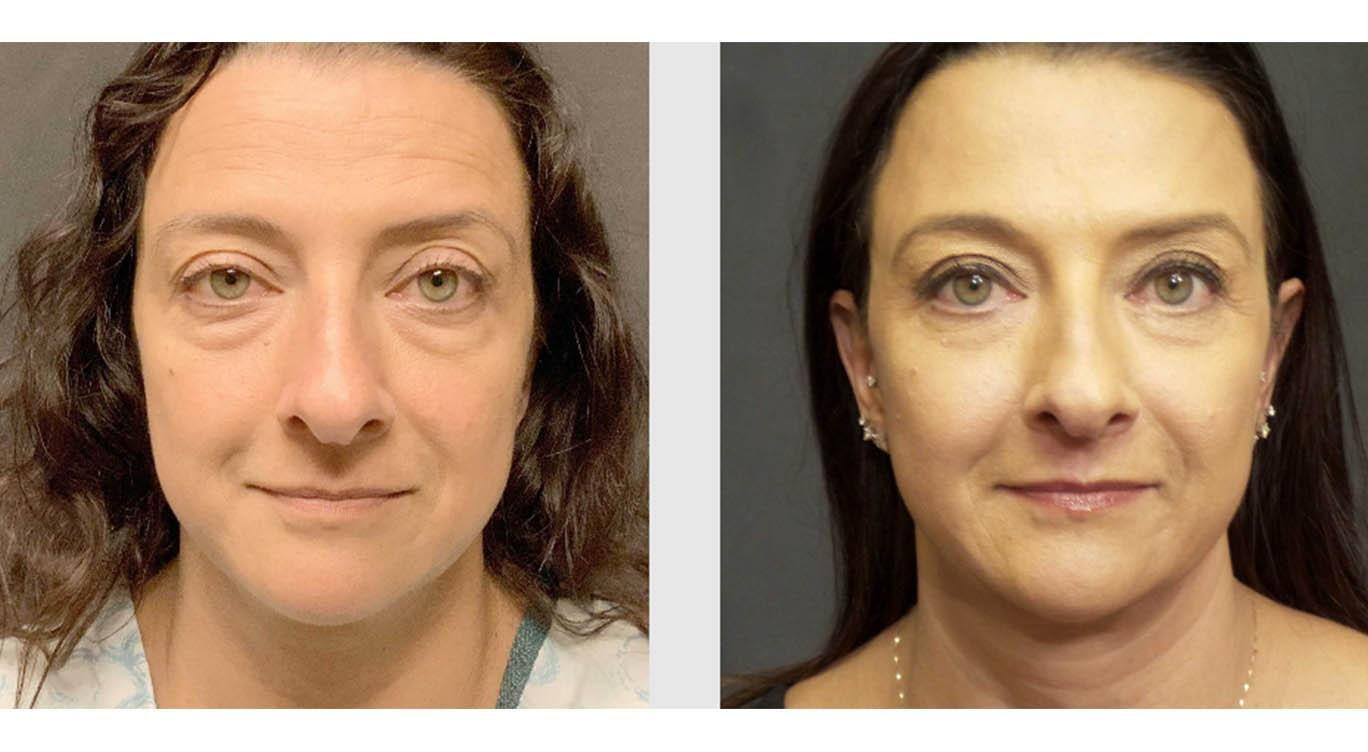 A Before and After photo of a Mid Facelift Plastic Surgery by Dr. Craig Jonov in Seattle and Tacoma