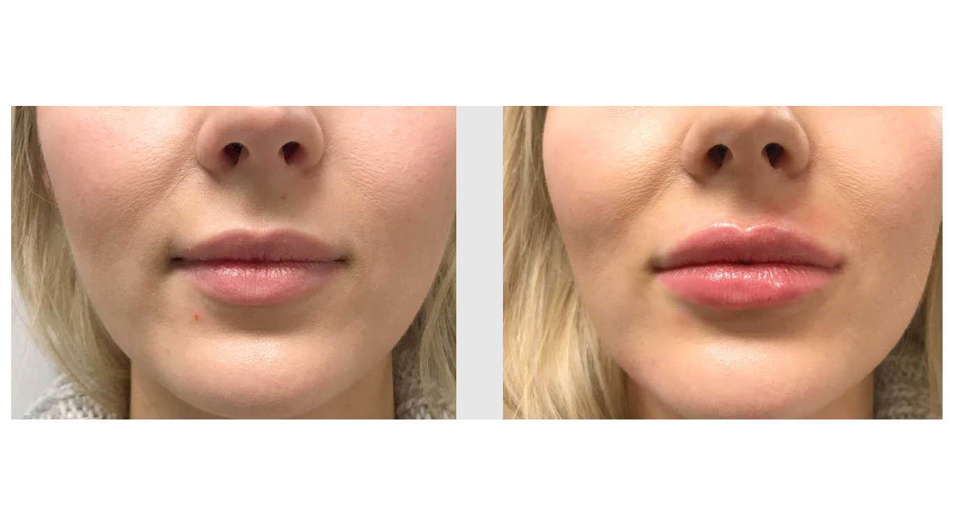A Before and After photo of Restylane Defyne Lip Filler at Seattle Plastic Surgery in Seattle and Tacoma