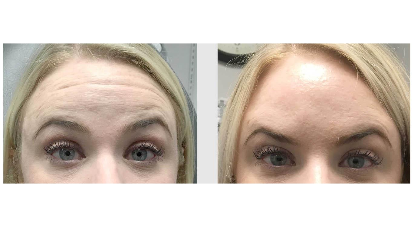 A Before and After photo of Dysport injections at Seattle Plastic Surgery in Seattle and Tacoma