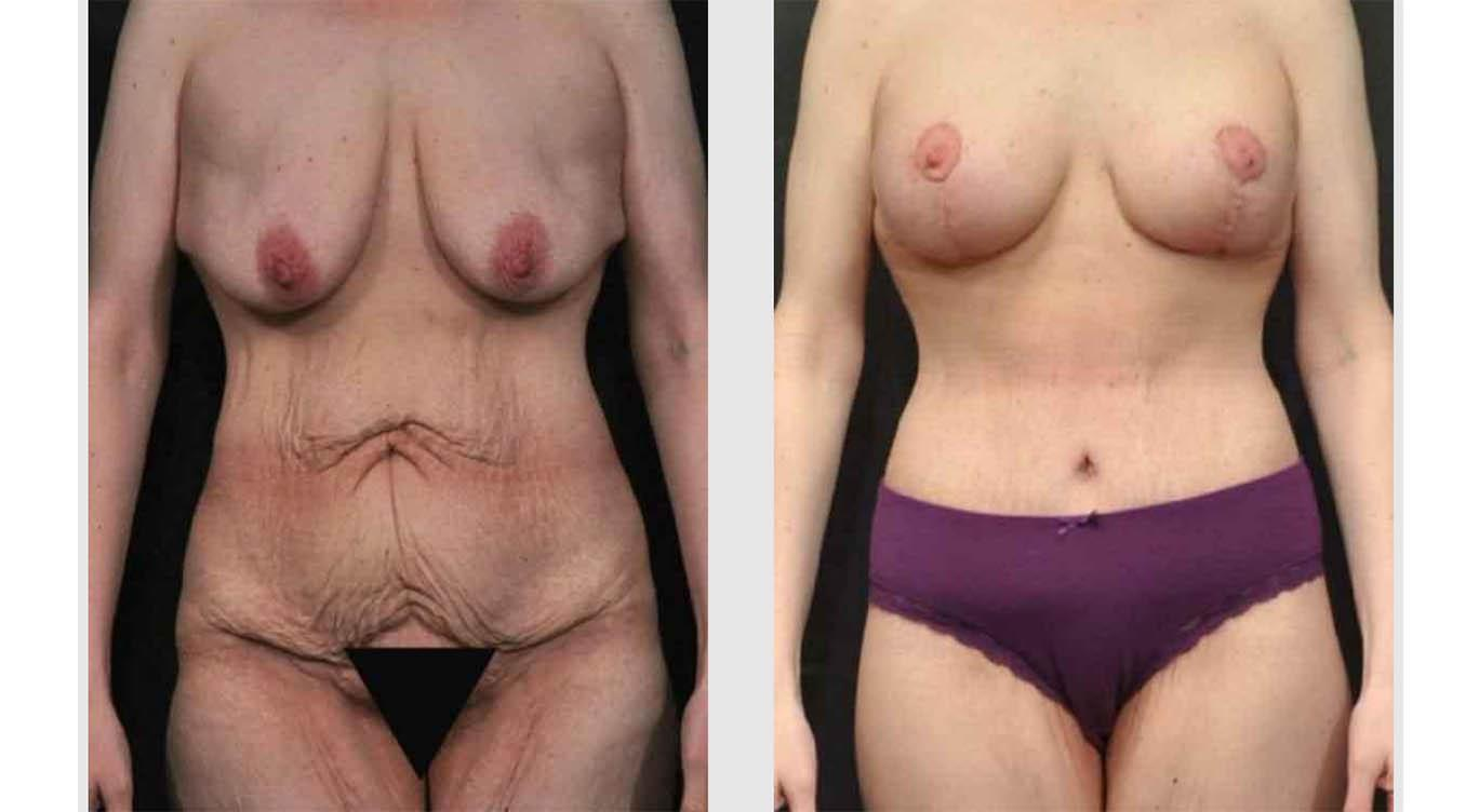 A Before and After photo of a Mommy Makeover Plastic Surgery by Dr. Craig Jonov in Seattle and Tacoma
