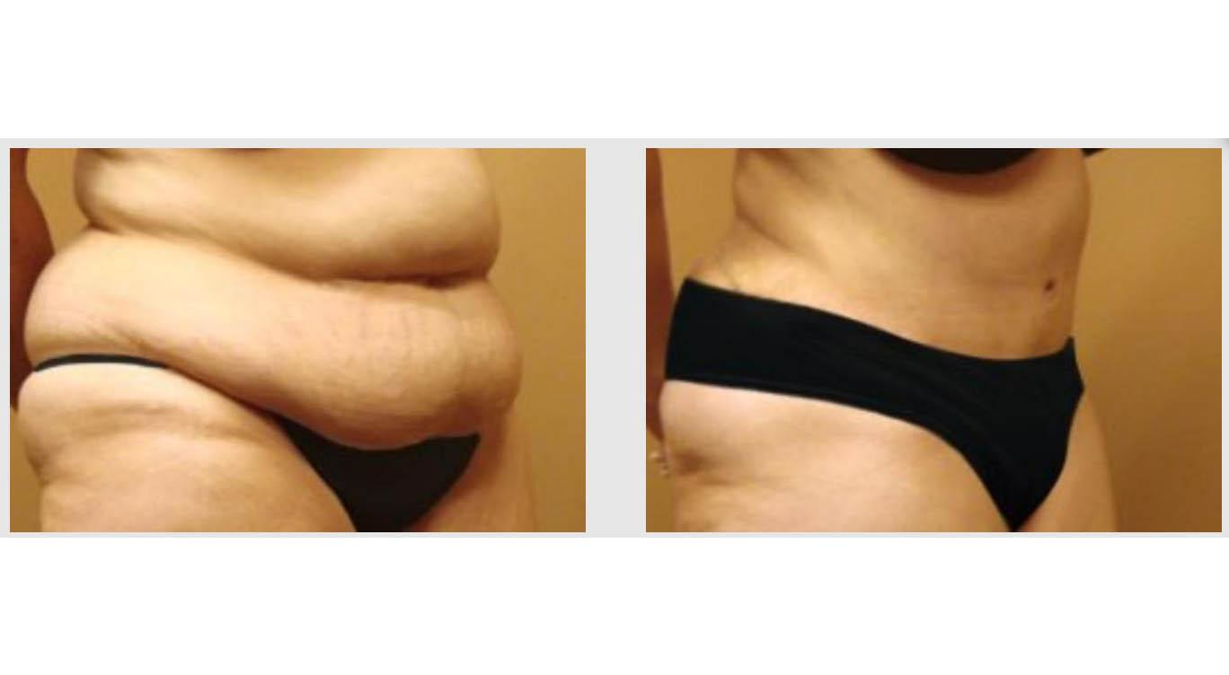 A Before and After photo of an Extended Tummy Tuck Plastic Surgery by Dr. Craig Jonov in Seattle and Tacoma