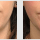 A Before and After photo of a Liposuction Plastic Surgery by Dr. Craig Jonov in Seattle and Tacoma
