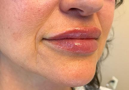 An After Photo of Lip Filler in Seattle and Tacoma