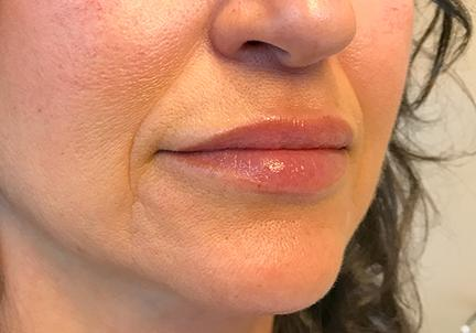 A Before Photo of Lip Filler in Seattle and Tacoma