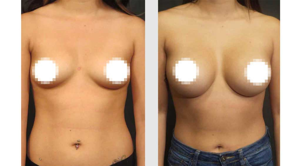 A Before and After of a Breast Augmentation Plastic Surgery by Dr. Craig Jonov in Seattle and Tacoma