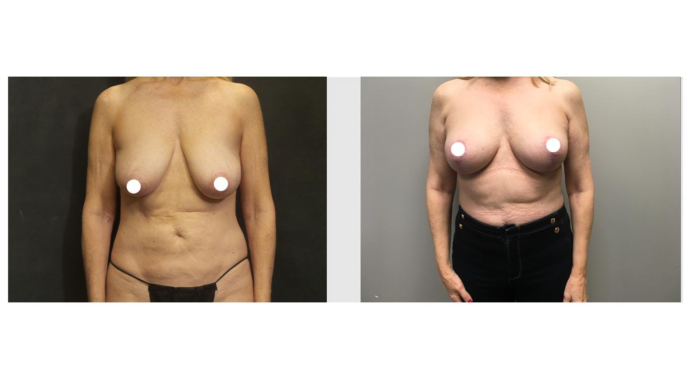 A Before and After Photo of an Auto Augmentation Plastic Surgery by Dr. Craig Jonov in Seattle and Tacoma