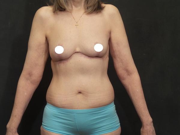 An After Photo of a Reverse Tummy Tuck Plastic Surgery by Dr. Craig Jonov in Seattle and Tacoma