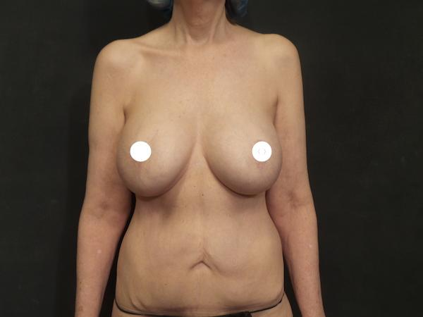 A Before Photo of a Reverse Tummy Tuck Plastic Surgery by Dr. Craig Jonov in Seattle and Tacoma