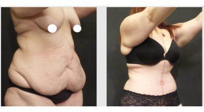 A Before And After Photo Of A Fleur De Lis Tummy Tuck Plastic Surgery by Dr. Craig Jonov in Seattle and Tacoma